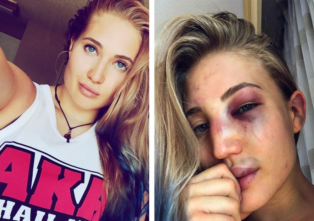 Анастасия Янькова до и после боя в ММА